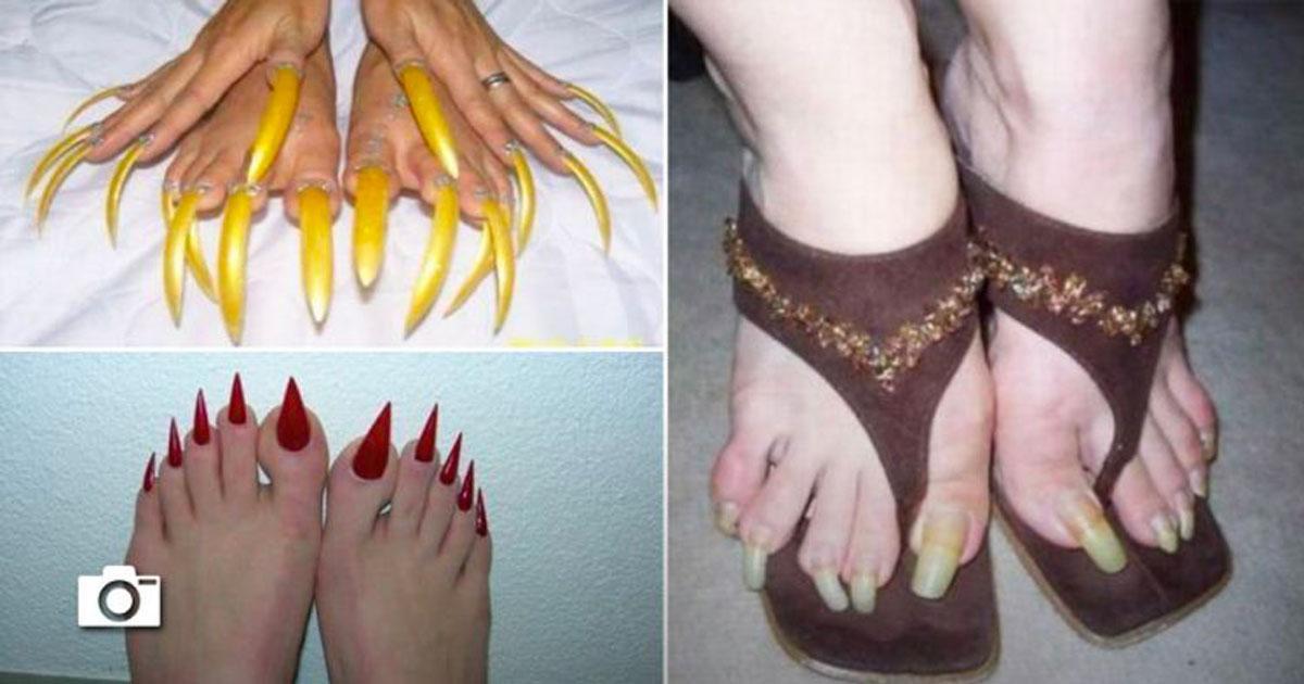 20 photos des pires ongles de pieds jamais vus, la troisième photo est à faire vomir!