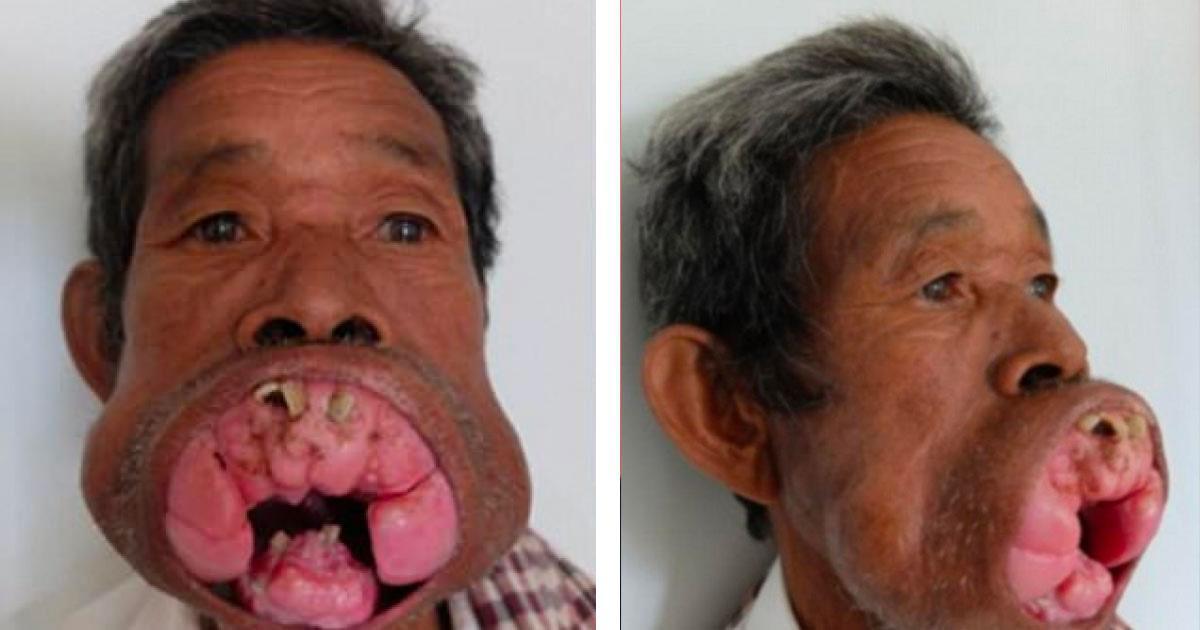 Depuis 30 ans, il souffre d'une terrible tumeur à la bouche, mais aujourd'hui il ne ressemble plus du tout à ça!