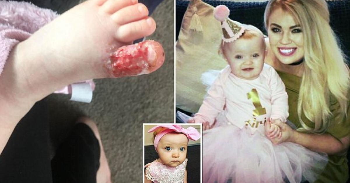 Une fillette de 18 mois pas à un cheveu de se faire amputer un orteil suite à une erreur qui arrive souvent.