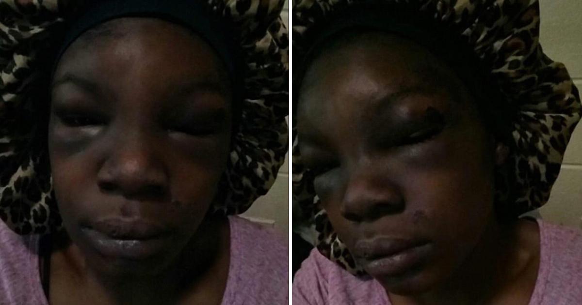 Une femme enceinte de 5 mois perd son bébé après avoir été battue sauvagement