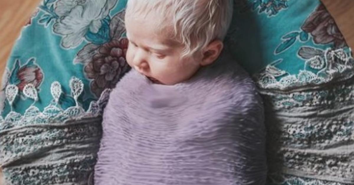 Un bébé albinos affole la salle d'accouchement