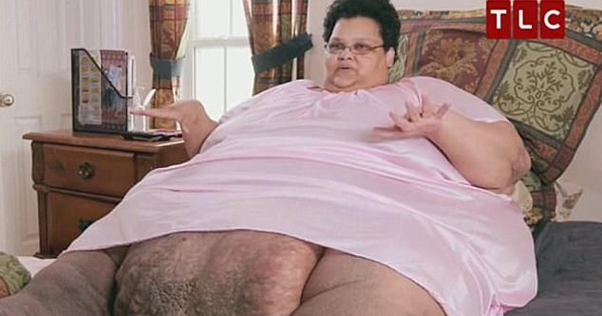 Une obèse morbide de 340 kilos qui a perdu 270 kilos en 3 ans doit réapprendre à marcher