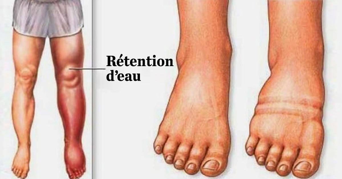 Rétention d'eau : en voici la cause et comment dégonfler les pieds et les jambes naturellement