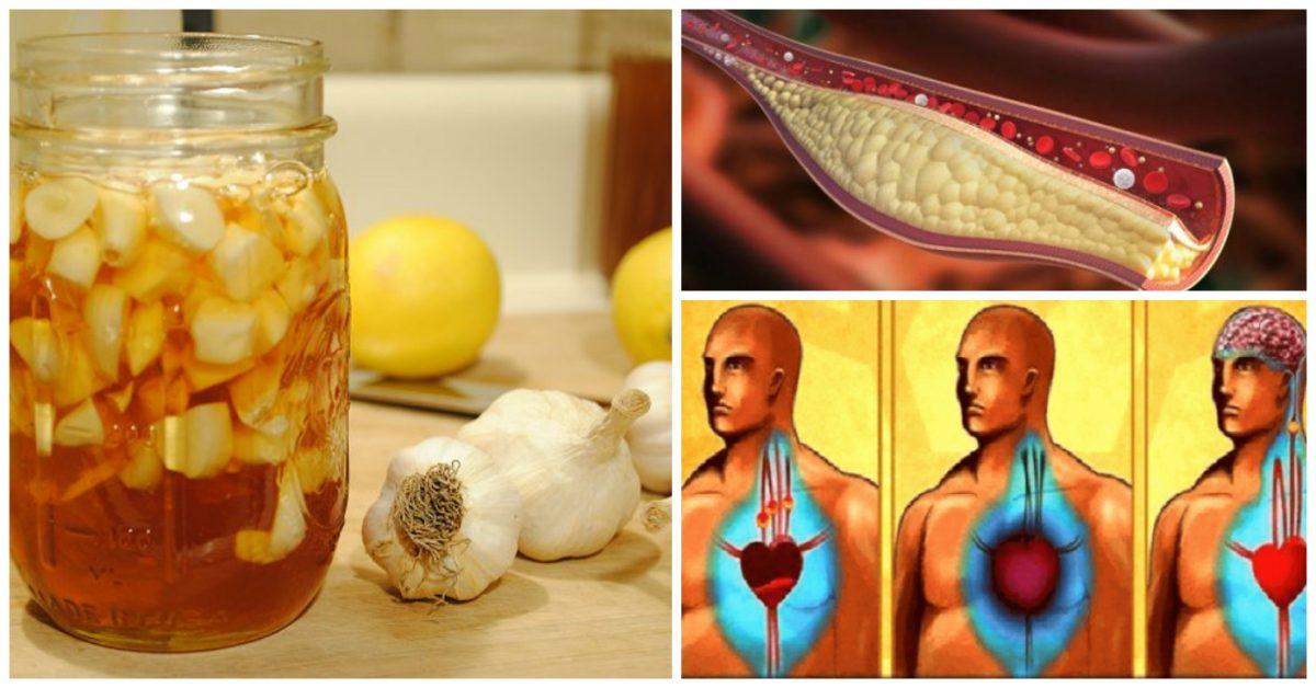 Vous ne devez consommer que ce remède pour nettoyer les artères, éliminer le mauvais cholestérol et éviter la crise cardiaque