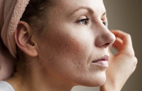 8 conseils pour resserrer les pores dilatés — Améliore ta Santé