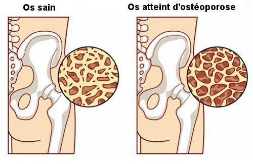 8 aliments pour prévenir l'ostéoporose — Améliore ta Santé