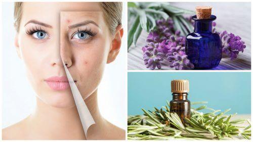 Nettoyez votre visage de l'acné avec ces 6 merveilleuses huiles essentielles — Améliore ta Santé