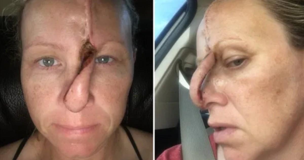 Une femme se retrouve avec un trou dans son nez après être allée 6 fois par semaine au salon de bronzage