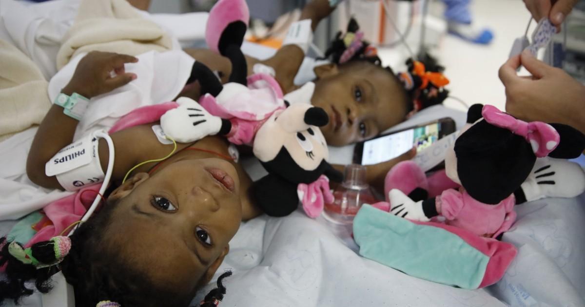 L'opération des petites sœurs siamoises à Lyon est un succès