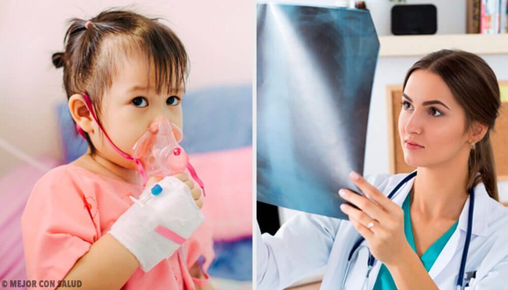 Le traitement de la pneumonie — Améliore ta Santé