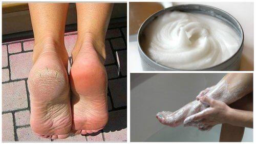 Éliminer les mycoses et les cors aux pieds – Améliore ta Santé