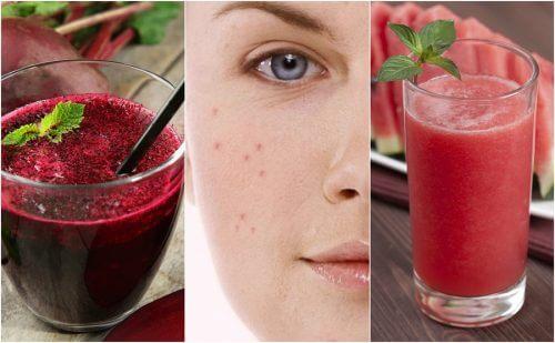 Comment combattre l'acné grâce à 5 smoothies détoxifiants — Améliore ta Santé