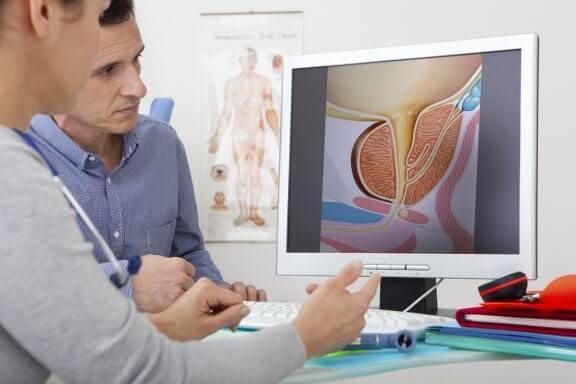 Quels sont les traitements de l'hyperplasie de la prostate ? — Améliore ta Santé