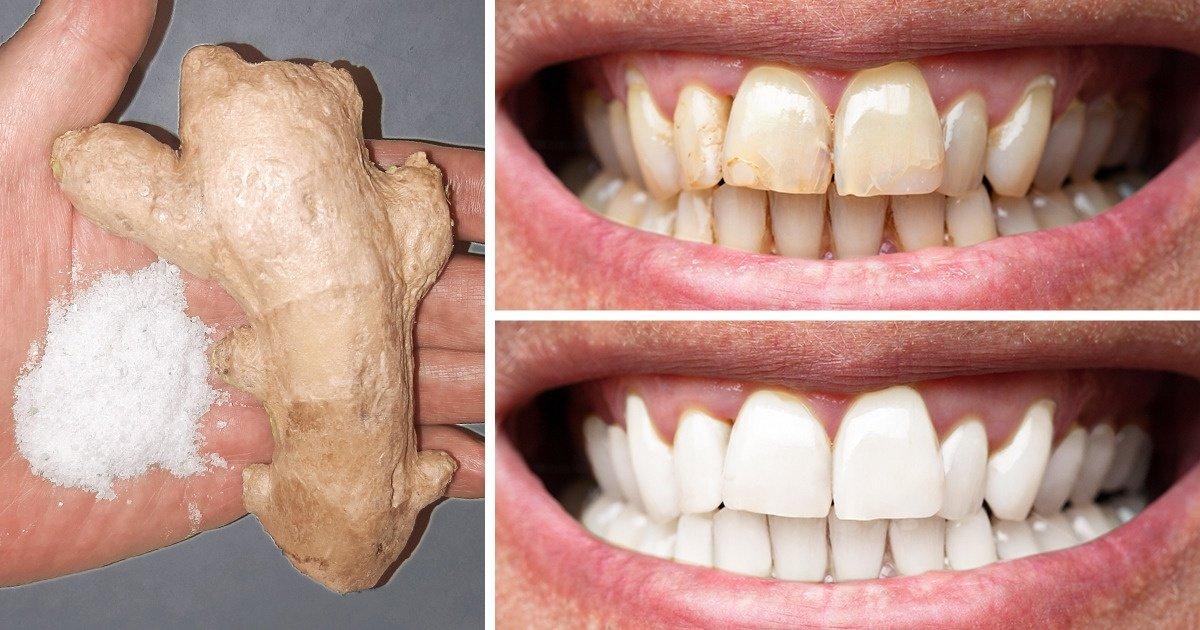 8 Astuces naturelles pour se blanchir les dents à la maison
