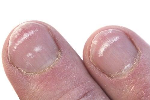 Pourquoi des marques blanches apparaissent sur les ongles ? — Améliore ta Santé
