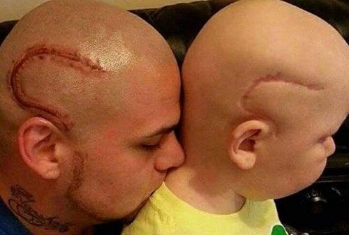 L'amour d'un père pour son fils opéré d'un cancer — Améliore ta Santé