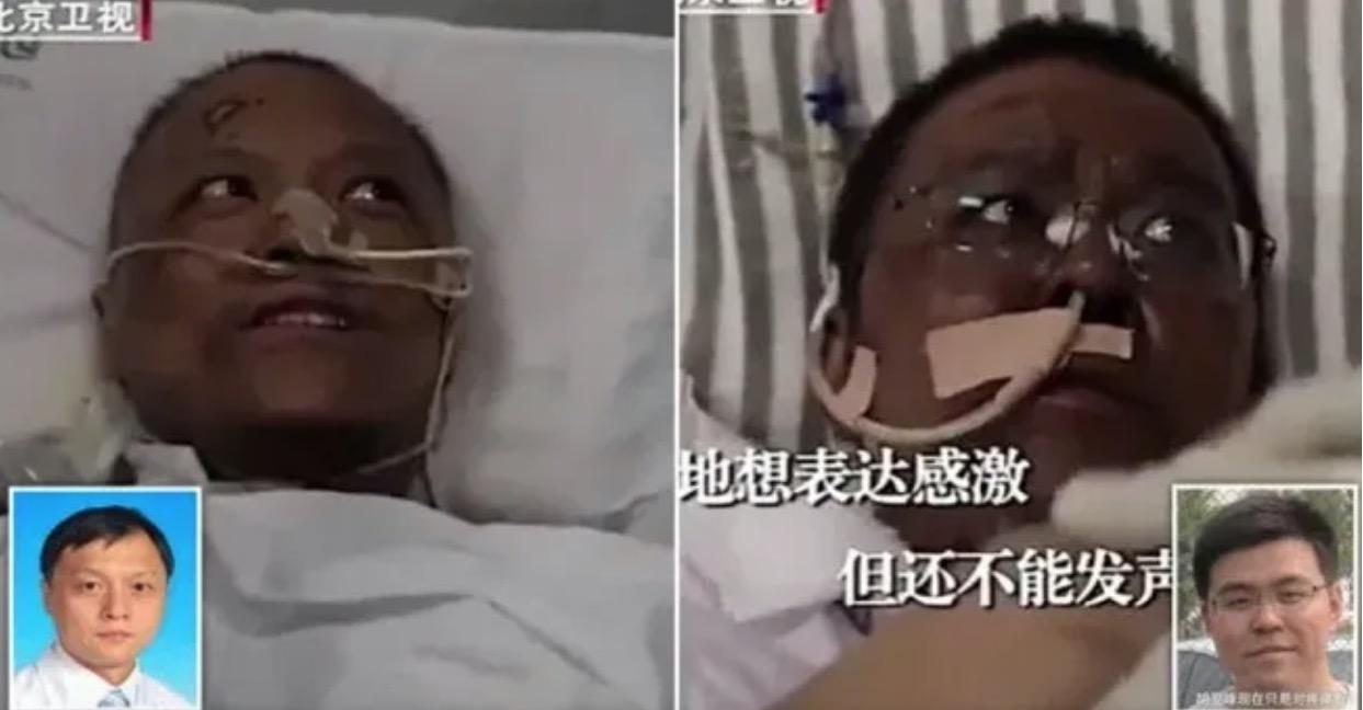 Covid-19 : pourquoi la peau de ces médecins de Wuhan est-elle devenue sombre ?