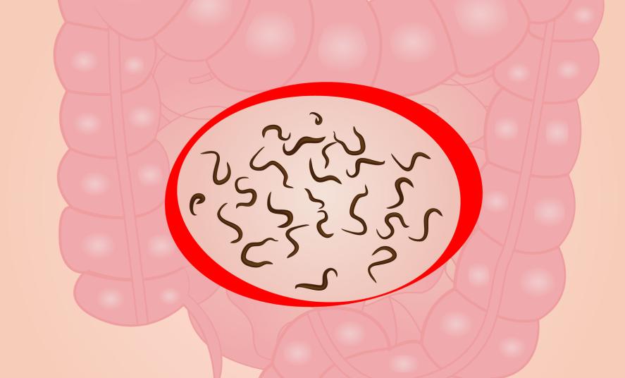 Vers intestinaux : 5 vermifuges naturels pour les humains