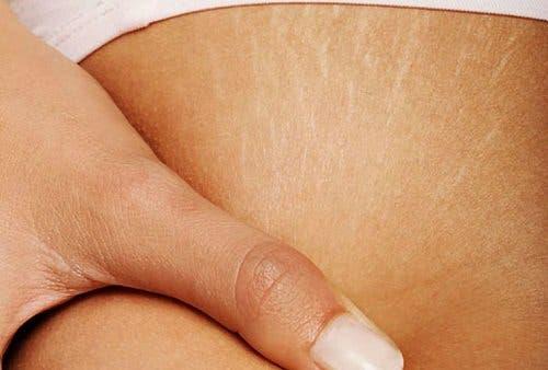 Traitements pour atténuer les vergetures sur la peau – Améliore ta Santé