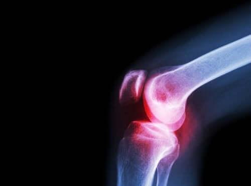 Les symptômes et les causes de l'arthrite septique – Améliore ta Santé