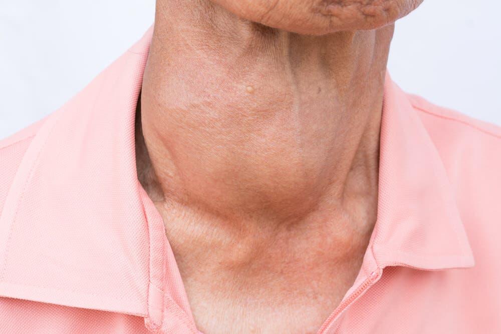 5 aliments pour contrôler votre thyroïde
