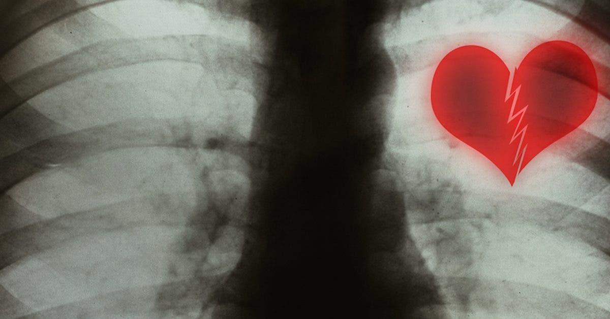 Le syndrome du cœur brisé existe et peut être déclenché par des situations stressantes