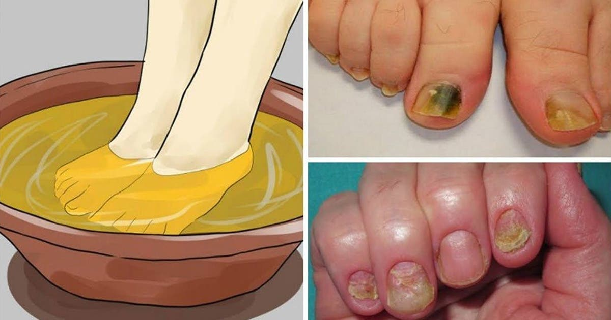 5 remèdes naturels pour soigner la mycose des ongles