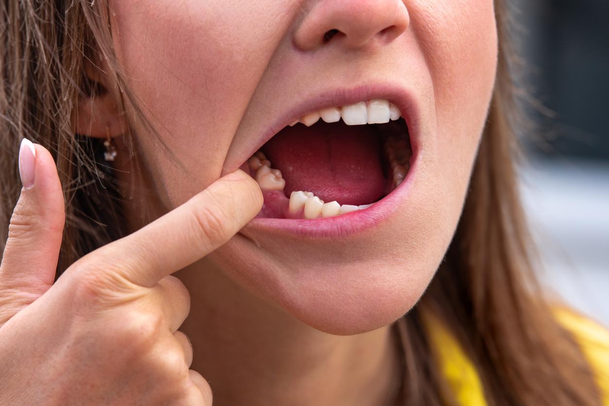 Ils découvrent un anticorps capable de régénérer les dents !