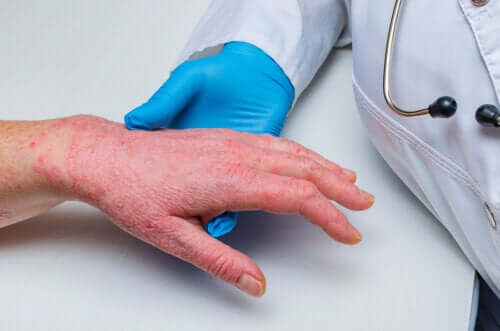 Psoriasis et maladie coronarienne : comment sont-ils liés ? – Améliore ta Santé