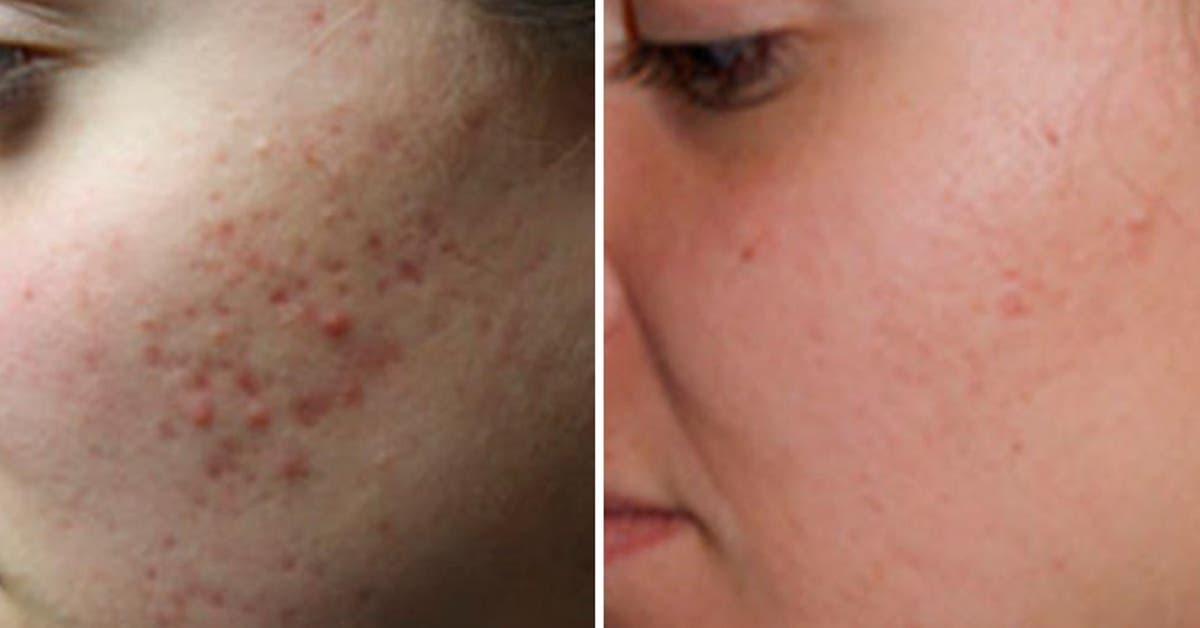 Oui, les cicatrices empêchent d'avoir une jolie peau : apprenez à les éliminer naturellement
