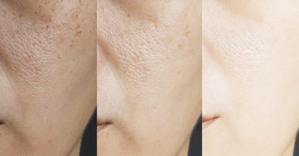 Masque au bicarbonate de soude pour éliminer les imperfections de la peau